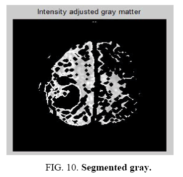 biotechnology-Segmented-gray